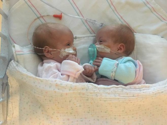 Sarah and Hannah Evans during their time in the hospital at UCLA. They spent the first few months of their lives in the hospital after being born premature.